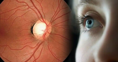 Vision Loss From Glaucoma